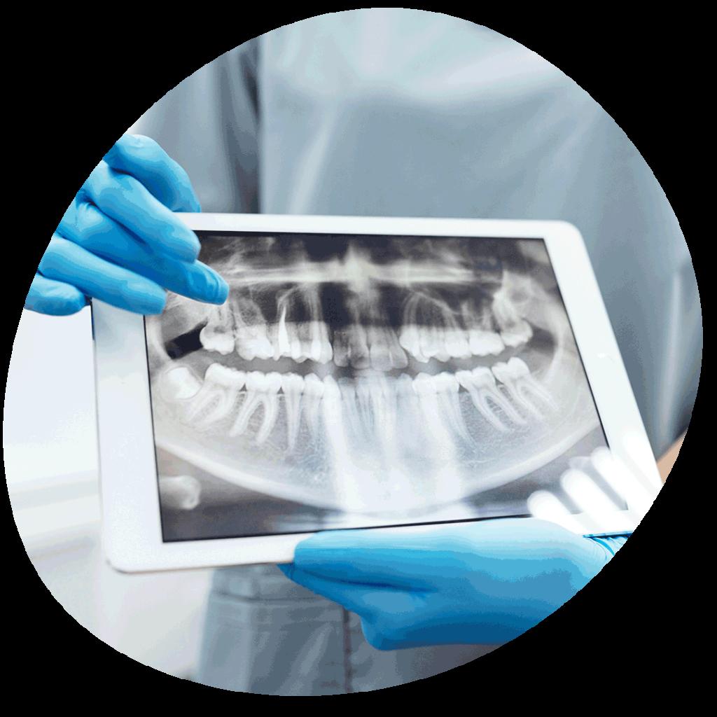 Dental scan on iPad